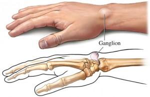 Ganglion Cyst In Wrist