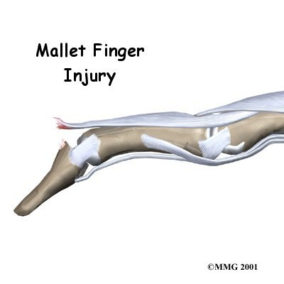 Mallet Finger Injury