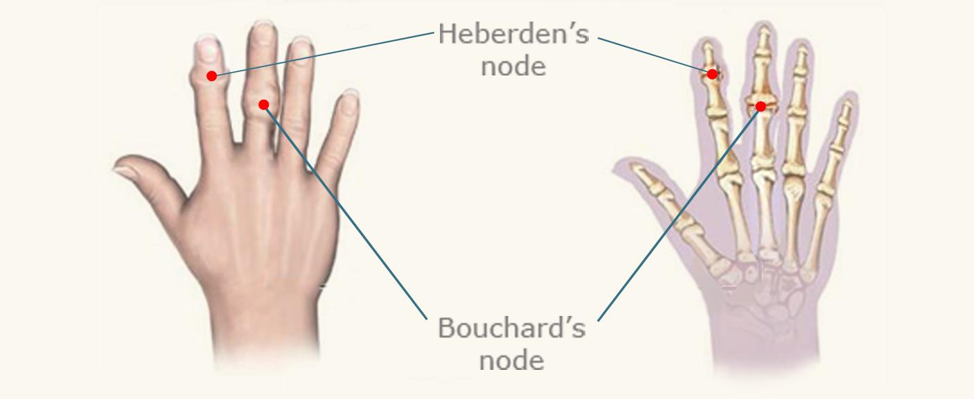 Heberdens-Nodes