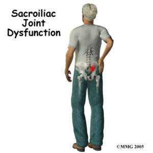 Saroiliac Joint