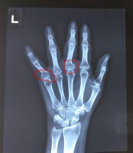 finger fracture