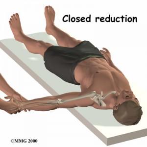Shoulder Reduction