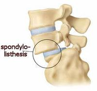 Spondylolisthesis means that a bone of the lower part of the spine (a vertebra) has slipped out of position and onto the bone below it. This is not to be confused with a slipped disc, where one of the spinal discs in between the vertebrae has ruptured. What are the symptoms? Spondylolisthesis may vary from mild to severe and there are not always symptoms. But typically, people with spondylolisthesis experience: lower back pain, which is often worse with activity and may lead to sciatica (pain radiating down the legs as a result of nerve damage) tight hamstring muscles pain in the thighs and buttocks stiffness tenderness in the area of the slipped vertebra Causes of spondylolisthesis In children, spondylolisthesis is usually due to a birth defect in that area of the spine, or the result of a sudden injury. In adults, it is most commonly caused by age-related wear of the spine or a degenerative disease such as arthritis. Other possible causes in adults are: a bone disease a fracture as a result of a sudden injury a stress (hairline) fracture as a result of sustained pressure on the spine - commonly seen in gymnasts and weight lifters When to see your GP You should see your GP if: you have persistent back pain or stiffness you have persistent pain in your buttocks or thighs your back curves excessively Your GP will physically examine you and may ask you to do a straight leg raise, which is often painful if you have spondylolisthesis. An X-ray of your spine (taken when you are standing) will show if one of your bones is out of place, and whether you have a fracture. Treatment and outlook Treatment varies depending on the severity of your condition. You may get better simply by doing some strengthening and stretching exercises and avoiding contact sports and over-stretching the spine. You should try non-surgical treatments first, such as: anti-inflammatory painkillers to reduce back pain physiotherapy bed rest These measures will only provide temporary relief, but you may find symptoms go away with time anyway. A back brace is not usually recommended as it doesn't let you use your core spinal muscles, and so weakens your spine. You should avoid activities while you are still experiencing symptoms. Possible complications Uncorrected spondylolisthesis may sometimes result in kyphosis, where the top of the back is excessively curved and appears more rounded than normal. Severe cases Severe pain that does not get better may require surgery. This involves fusing the slipped vertebra to the neighbouring vertebrae. Surgery carries a risk of nerve injury, so you should talk to your doctor about the pros and cons of this treatment and think about it carefully before you proceed. The procedure is usually effective in relieving symptoms of severe spondylolisthesis when the vertebra is pressing on nerves.