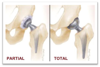 Hip Replacement Singapore Orthopaedic And Sports Medicine