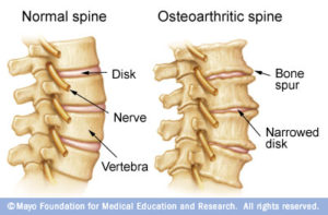 Osteoarthritis in the Spine