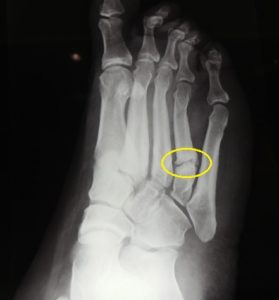 Stress Fracture of the Fot
